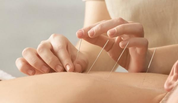 image for SSK Acupuncture
